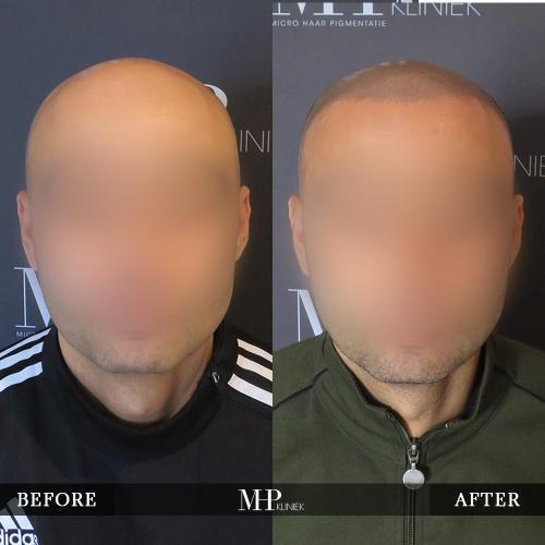 MHP-Micro-Haar-Pigmentatie-V6