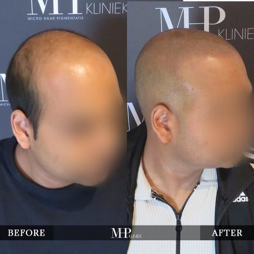 MHP-Micro-Haar-Pigmentatie-V8
