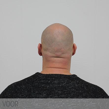 micro-haar-pigmentatie-1