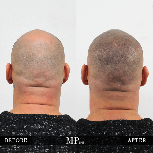 micro-haar-pigmentatie-12