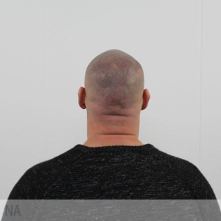 micro-haar-pigmentatie-2