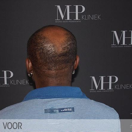 micro-haar-pigmentatie-3
