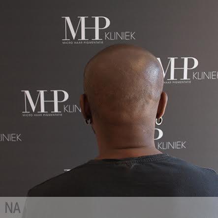 micro-haar-pigmentatie-4