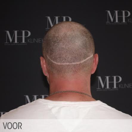 micro-haar-pigmentatie-5