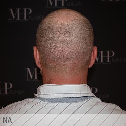 micro-haar-pigmentatie-6