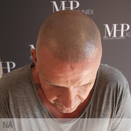micro-haar-pigmentatie-9