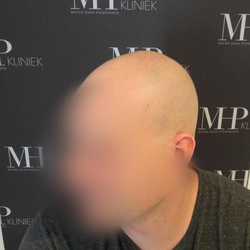 micro-haar-pigmentatie 0