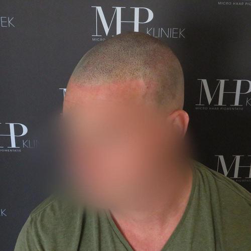 micro-haar-pigmentatie 1