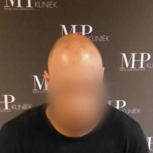 micro-haar-pigmentatie 10