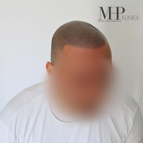 micro-haar-pigmentatie 11