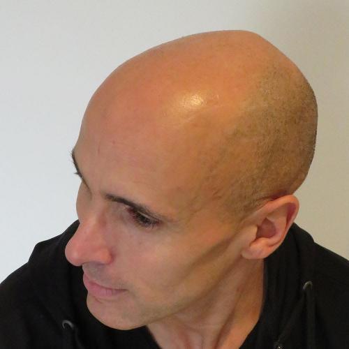 micro-haar-pigmentatie 12