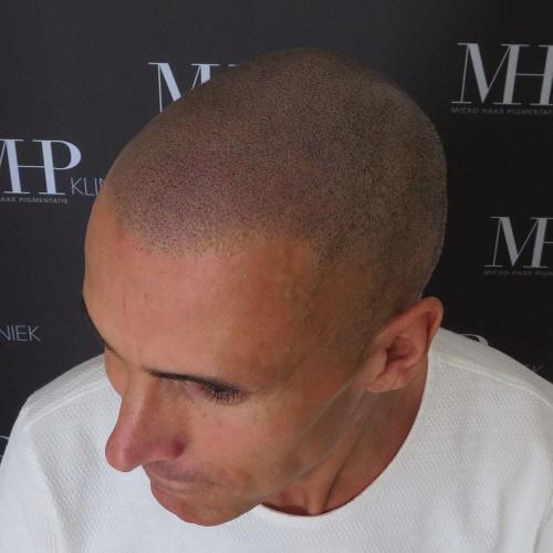 micro-haar-pigmentatie 13