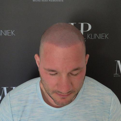 micro-haar-pigmentatie 15