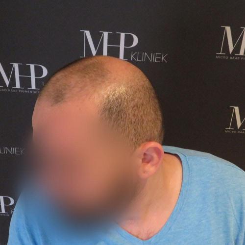 micro-haar-pigmentatie 16