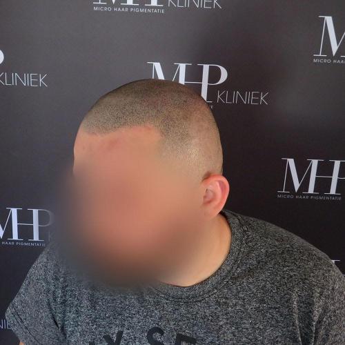 micro-haar-pigmentatie 17