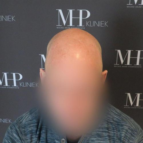 micro-haar-pigmentatie 18