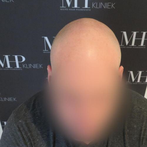 micro-haar-pigmentatie 2