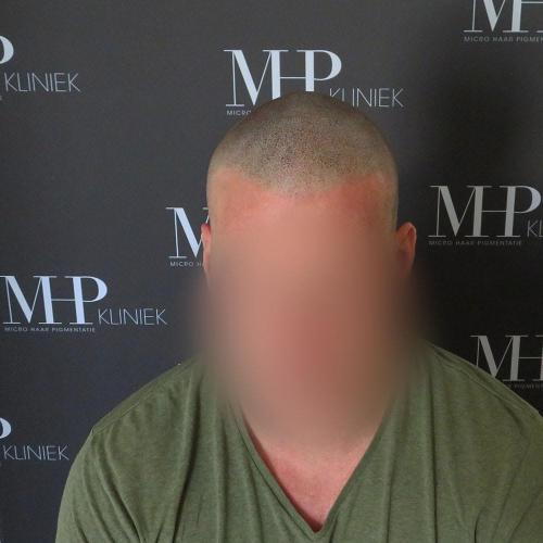 micro-haar-pigmentatie 3