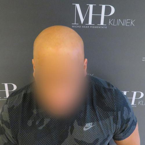 micro-haar-pigmentatie 6