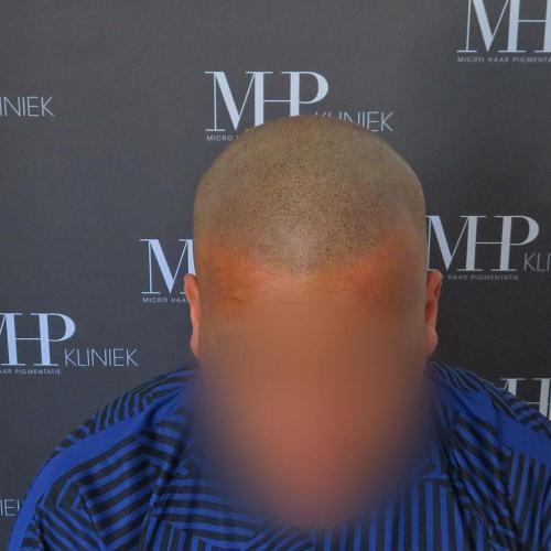 micro-haar-pigmentatie 7